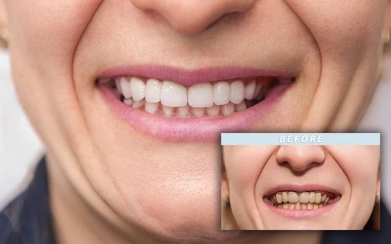 bleka tänderna laser